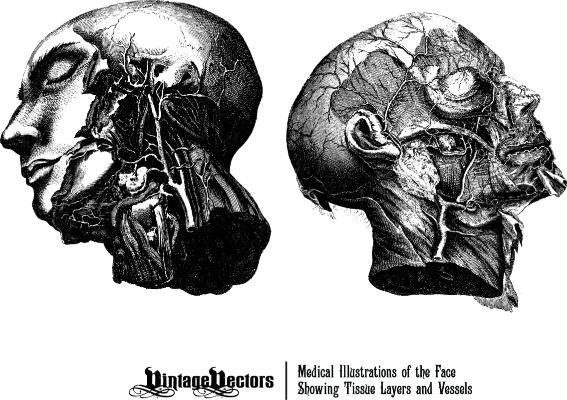 Peeled Back Face Medical Illustration