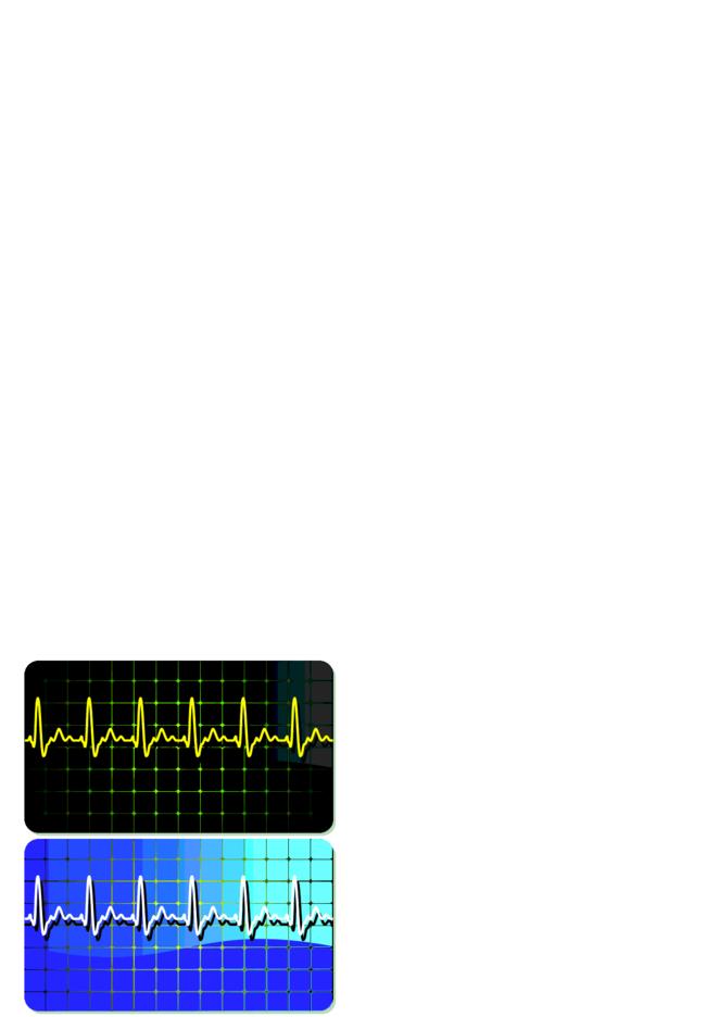 Electrocardiogram Business Card